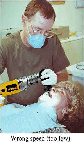 Dentist using right angle power drill
